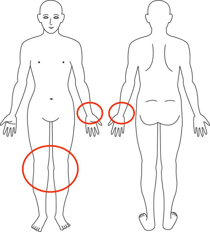大阪,腱鞘炎,膝痛,産後骨盤矯正