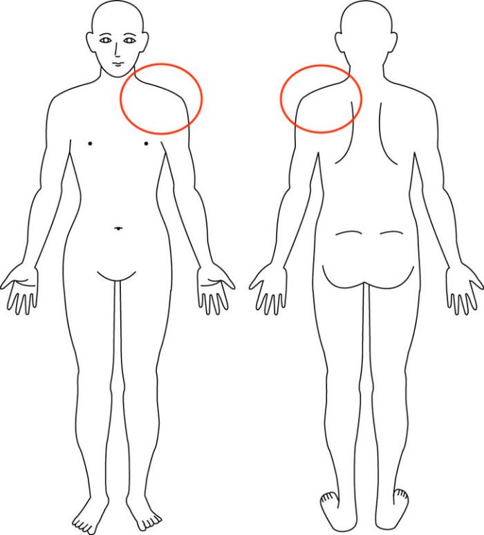 大阪,産後骨盤矯正,症例,肩の痛み