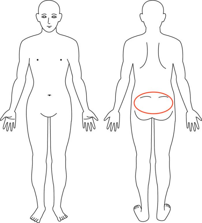 大阪,産後骨盤矯正,尾骨痛,症例