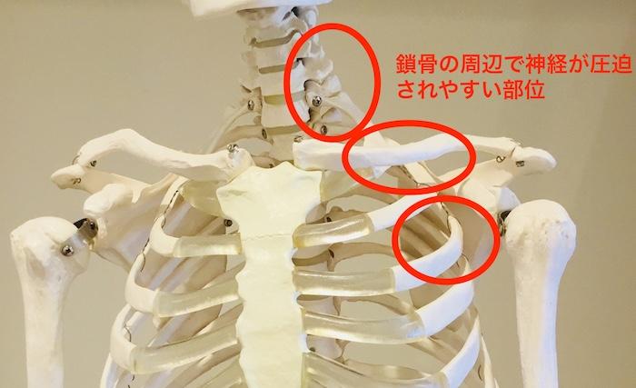 鎖骨周囲の神経圧迫部位