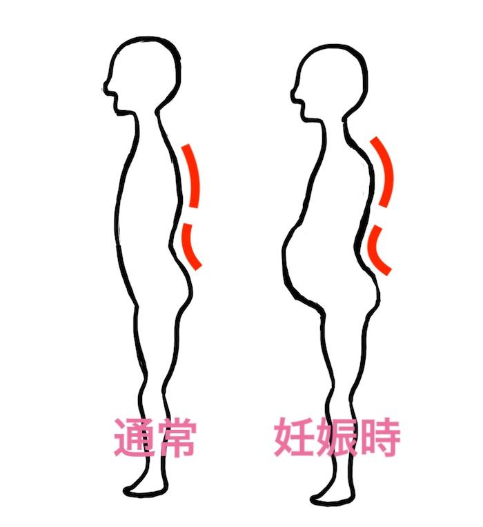 妊娠時の姿勢の変化